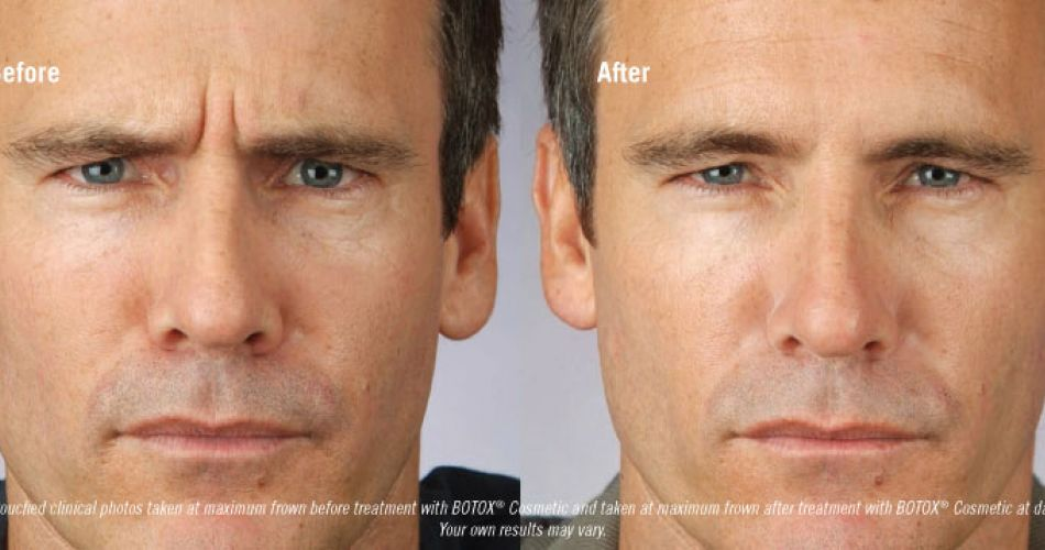 Botox Male