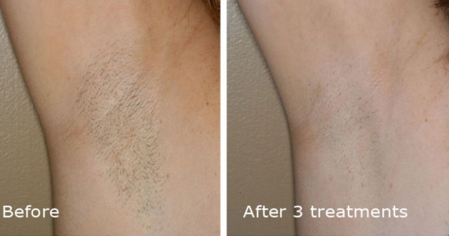 Hair Removal Underarm