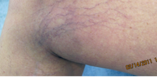 Sclerotherapy Before