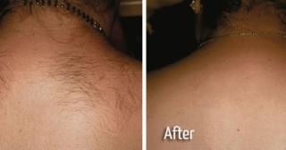 Hair Removal Back