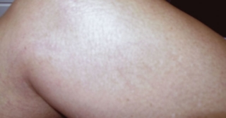 Sclerotherapy After